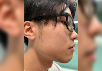 Man in Hong Kong arrested over assault on student leader during protest on campus