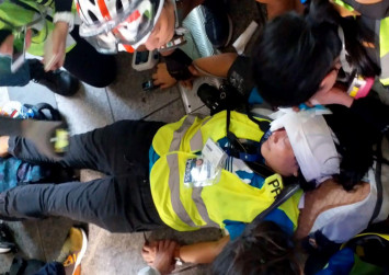 Indonesian journalist wants answers after shot in face by Hong Kong police