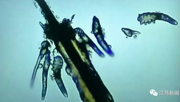 Chinese woman finds mites living in eyelashes due to bad makeup removal habits