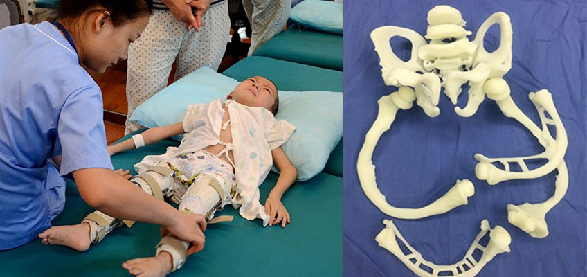 Boy with brittle bone disease stands with help from 3D printing technology