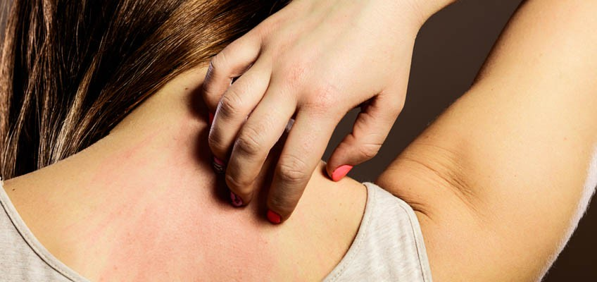 6 possible causes why you're feeling itchy