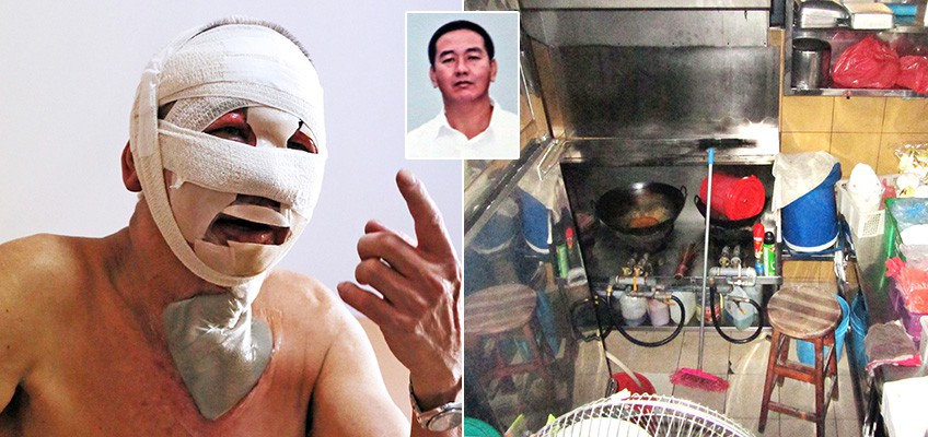 CNY fire burns 95% of hawker's face